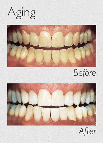 Teeth Whitening Aging Image
