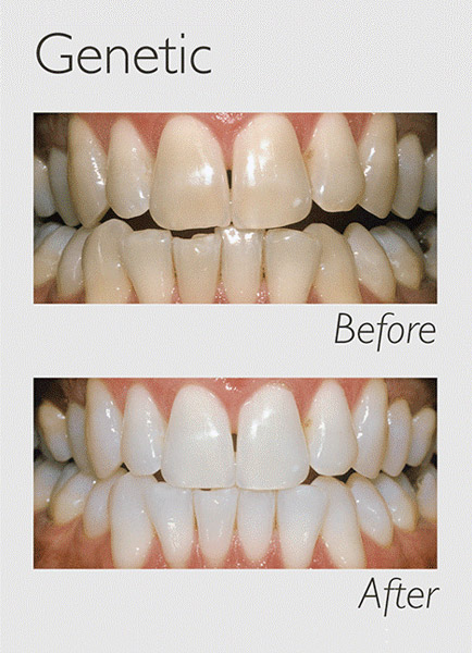 teeth whitening genetic image