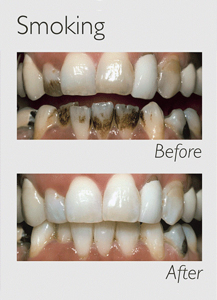 teeth whitening smoking image