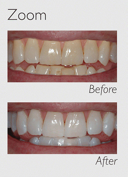 teeth whitening zoom image 1
